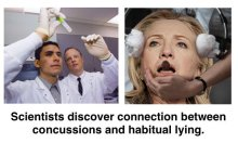 hillary concussions